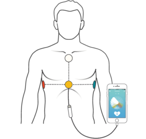 Depiction of how electrodes are attached to the body